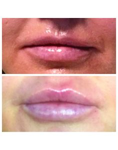 Lips Before & After
