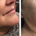RESTYLANE® Lyft to mid face and RESTYLANE® Silk to the lips