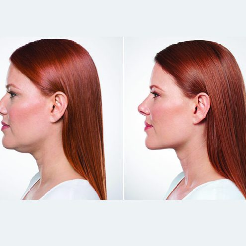 Kybella chin injections in Boise, Idaho
